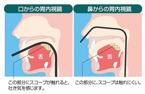 鼻から挿入する苦痛のない経鼻検査