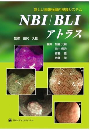 新しい画像強調内視鏡システムNBI/BLIアトラス